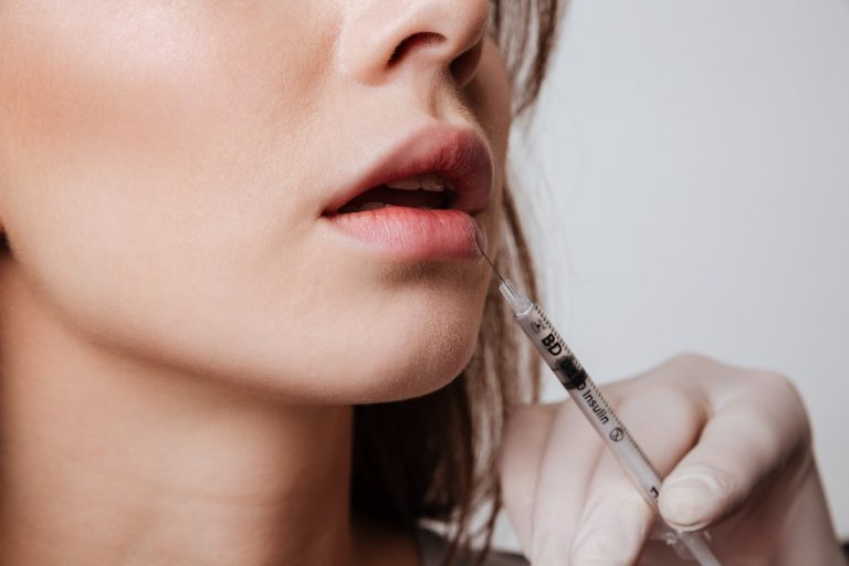 woman getting fillers